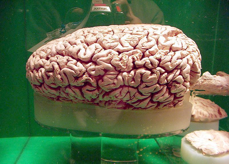 Sperm Whale Brain